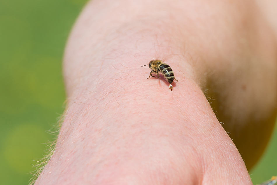 being stung by a bee