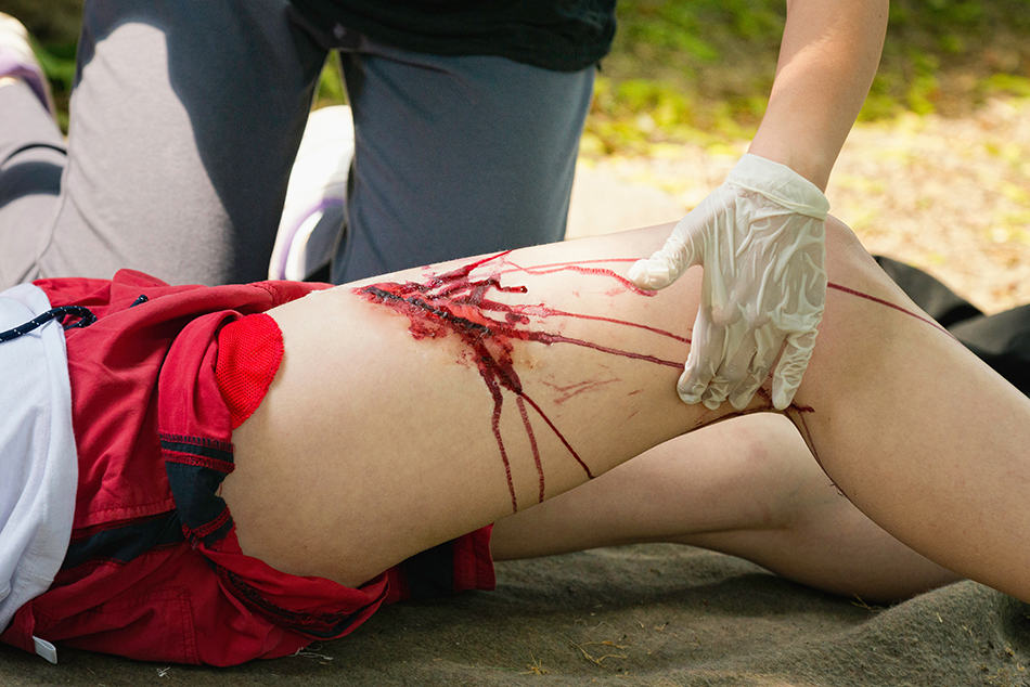 someone bleeding