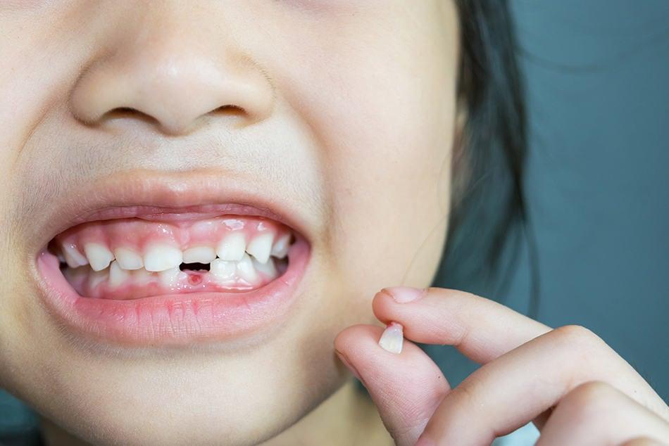 Dream of Broken Teeth Falling Out
