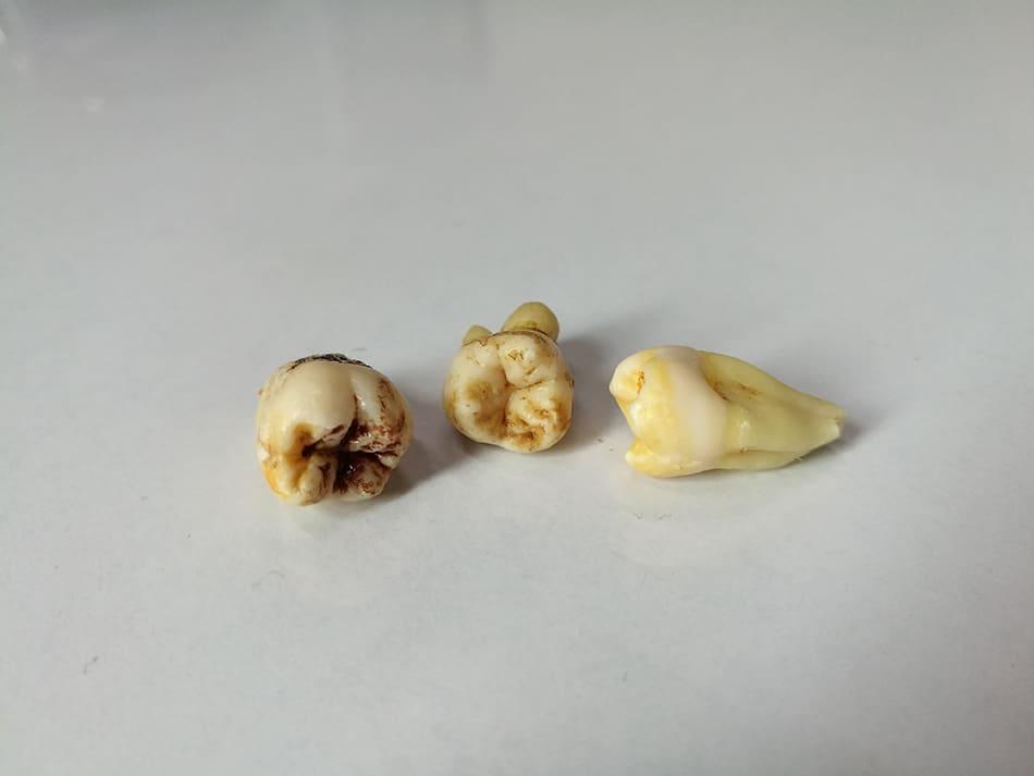 Dream of Rotten Teeth