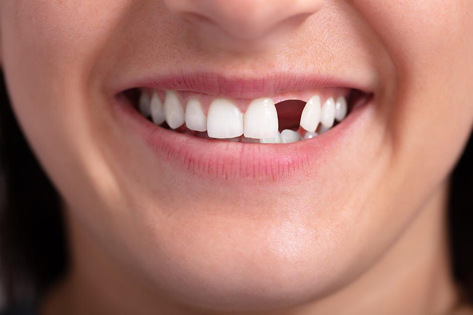Dream of Someone Else Missing Teeth